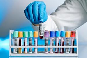 Томские ученые создают приложение для расшифровки медицинских анализов